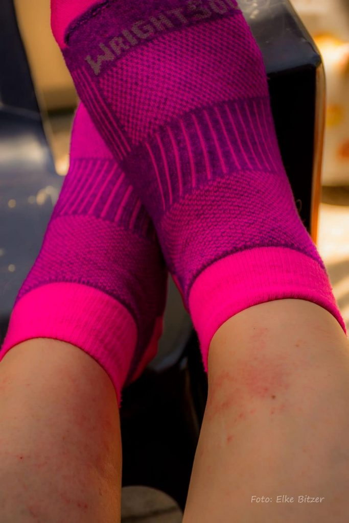 Rote Pusteln am Bein